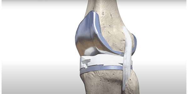 MicroPort Orthopedics Launches Kinematic Alignment for the Evolution Medial-Pivot Knee
