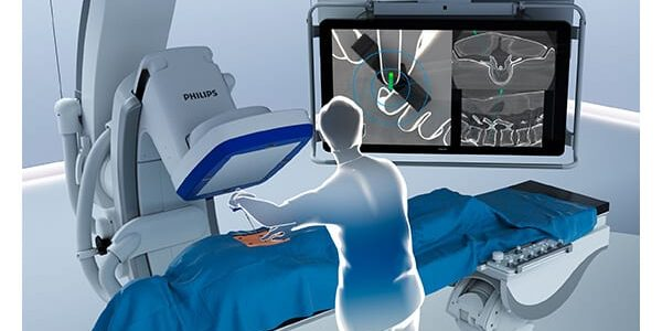 Philips Launches ClarifEye Augmented Reality Surgical Navigation