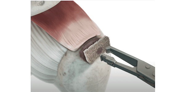 Sparta Biopharma Launches Allograft for Rotator Cuff Repair