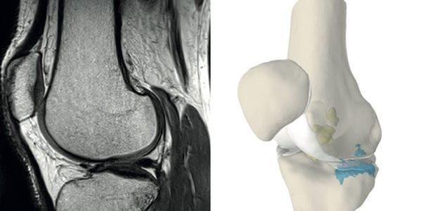 Episurf Medical Granted EU Patent for 3D Visualisation