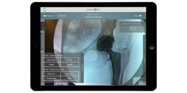 DePuy Synthes Acquiring JointPoint Navigation Assets