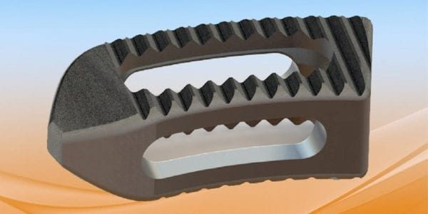 Life Spine Gains FDA Clearance of Steerable PLATEAU Ti Interbody