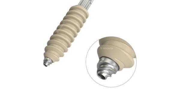 Medacta's MectaScrew PEEK Implanted in the U.S.