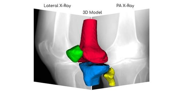 RSIP Vision Debuts AI for 3D Knee Image Reconstruction