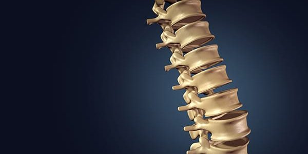 Aurora Spine Issued Patent for DEXA Technology