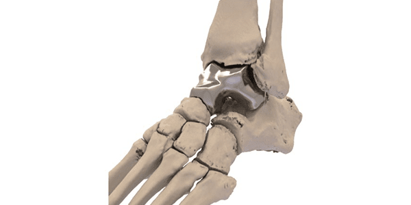 FDA Approves Additive Orthopaedics' Patient Specific Talus Spacer