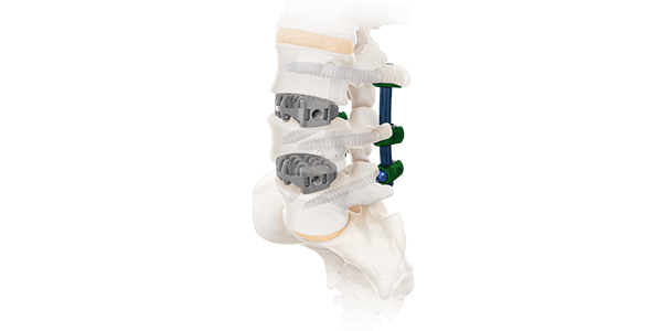 Camber Spine Launches Complete OLIF Technique System