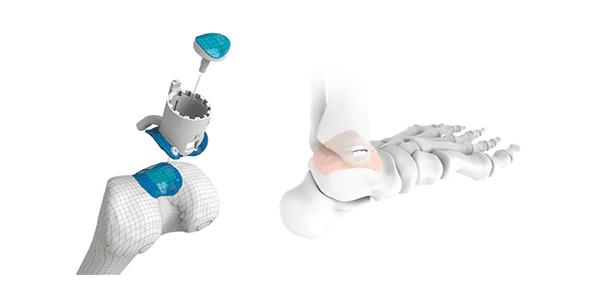 Episurf Medical Reaches Milestone of 1,000 Implants