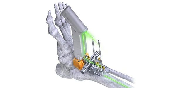 Paragon 28 Conducts the First Total Ankle Replacement with Laser Alignment Technology