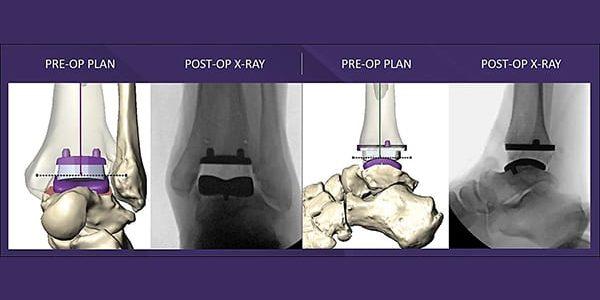 Paragon 28 Gains FDA 510(k) Clearance for MAVEN Patient-Specific Instrumentation Surgery