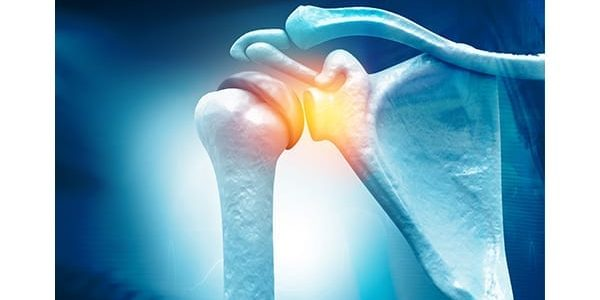Study Results: Exactech Equinoxe Shoulder Among Lowest Published Fracture Rates