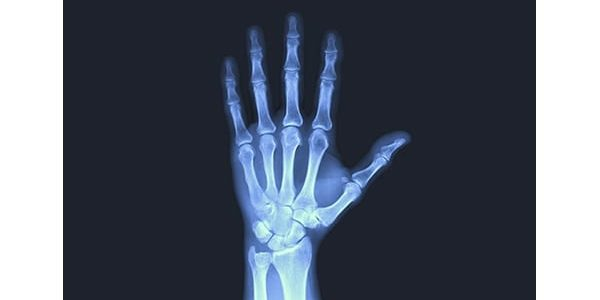 ExsoMed Gains FDA Clearance of InFrame Intramedullary Micro Nail for Proximal Phalanx Fractures