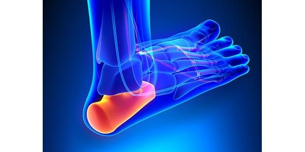 MiMedx Concludes Enrollment for Phase III Plantar Fasciitis Trial