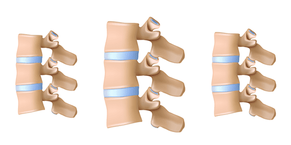TissueTech to Commence Study on Facet Joint Osteoarthritis Pain