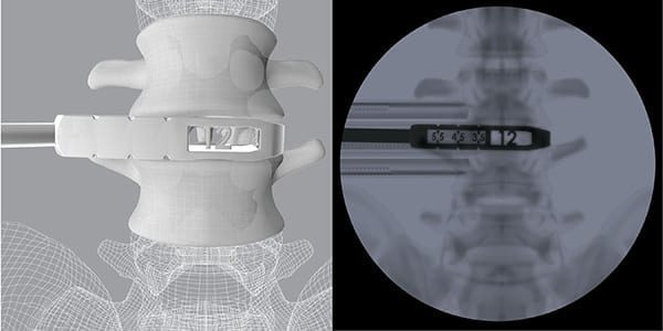CoreLink Launches Oblique Lumbar Interbody Fusion Instrument Set with 3D Printed Instruments