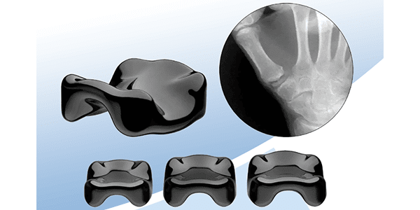 First Case with Ensemble Orthopedics Pyrocarbon Interpositional CMC
