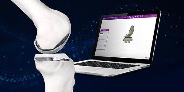 Exactech, Bodycad Partner on Personalized Uni Knee Distribution