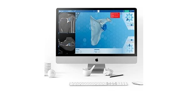 First Case with FH ORTHO e-ORTHO Shoulder Software