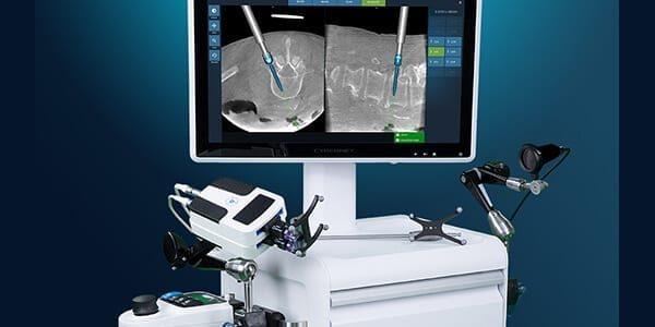 Fusion Robotics Completes First Spine Procedure