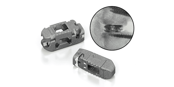 First Surgical Cases with Life Spine TRULIFT Expandable Spacer System