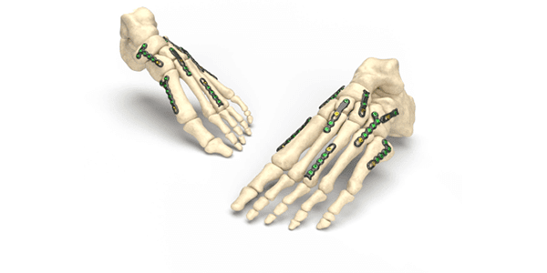 Nextremity Solutions Marks First Cases with Stratum RS Foot Plating