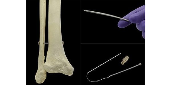 Panther Orthopedics Mid-Term Clinical Outcomes with the PUMA System