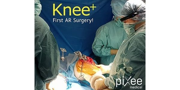 First Surgery with Pixee Medical AR Knee+ and Vuzix Glasses