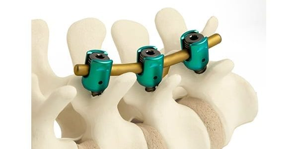ulrich medical USA Launches Momentum Posterior Spinal Fixation