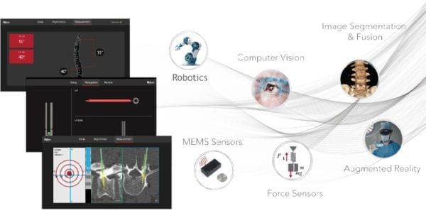MiRus Receives FDA 510(k) Clearance for GALILEO Spine Alignment Monitoring System