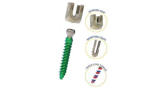 Precision Spine Launches Reform Ti Modular Pedicle Screw