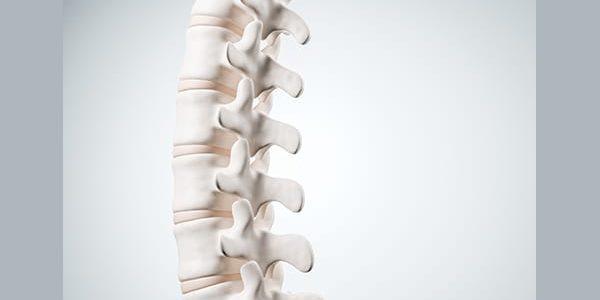 Aurora Spine Gains FDA 510(k) Clearance for DEXA-C Cervical Interbody