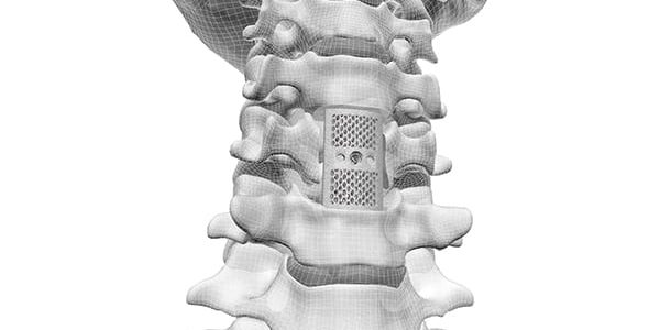 CoreLink Gains FDA Clearance for F3D Corpectomy System