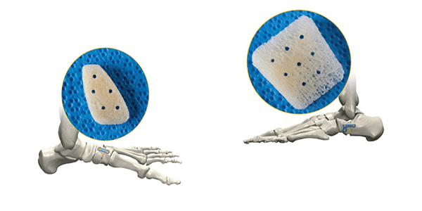 Extremity Medical Launches OMNI Arch Anatomical Wedge