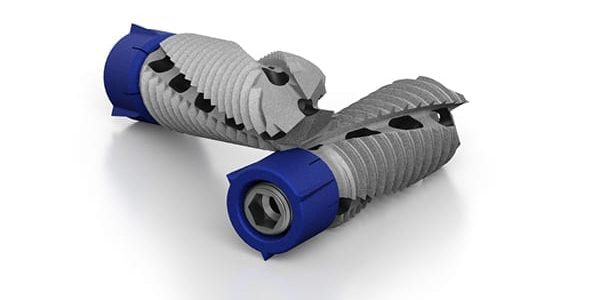 Life Spine Gains FDA 510(k) for SI Joint Revision, New Claims for SImpact Sacroiliac Joint Fixation System