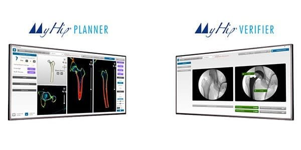 Medacta Gains Clearance for Total Hip Planning Tools
