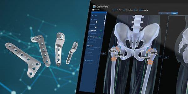 Orthofix Gains FDA Clearance of OrthoNext Digital Platform for the JuniOrtho Plating System