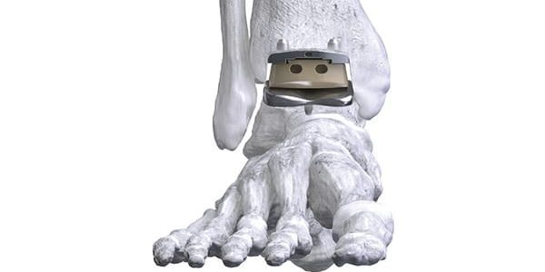 Paragon 28 Gains FDA Clearance for APEX 3D Total Ankle