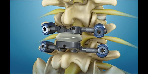 Premia Spine's TOPS Granted Breakthrough Device Designation