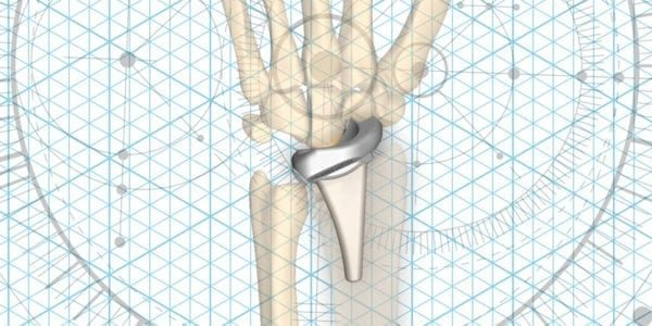 Extremity Medical Gains FDA Clearance for KinematX Total Wrist