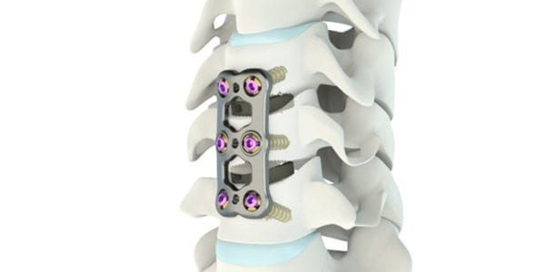 Medacta Gains FDA Clearance for Mecta-C Stand Alone ACIF Implant