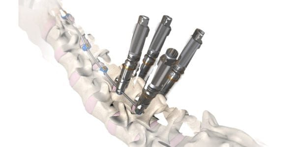 OrthoPediatrics Gains Expanded Indications for RESPONSE Scoliosis System