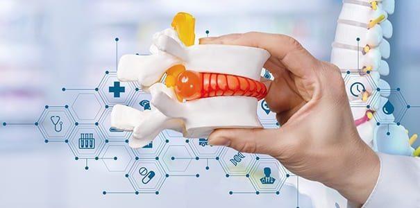NuVasive Launches Modulus ALIF Porous Implant for Anterior Spine Surgery