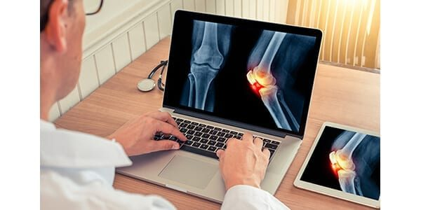 Radiobotics Gains FDA 510(k) for Knee Osteoarthritis Analysis Tool