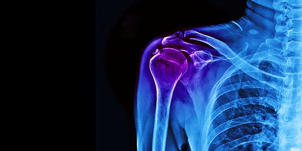 Shoulder Innovations Gains FDA Clearance For InSet Reverse Shoulder