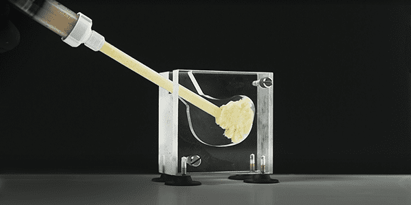 Bioventus Launches OSTEOAMP SELECT Flowable in the U.S.