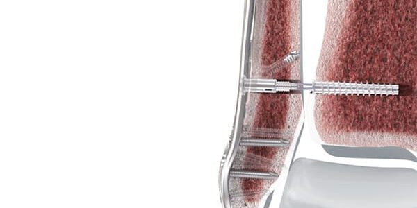 DePuy Synthes Launches FIBULINK Syndesmosis Repair