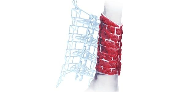 First Case with DePuy Synthes TRUMATCH Graft Cage