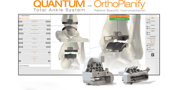 In2Bones Receives FDA Clearance for Pre-Surgery OrthoPlanify