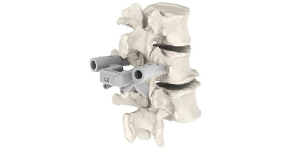 OrthoPediatrics Achieves 500th Case with FIREFLY Pedicle Screw Navigation Guides