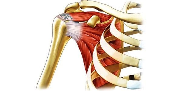 Ortho RTI Partners to Support Soft Tissue Repair